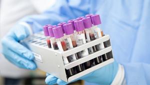 Ú teszt a HPV okozta daganat recidívájának szûrésére. 1. rész